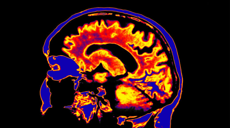 COVID Survival Declines When Brain Affected: Study