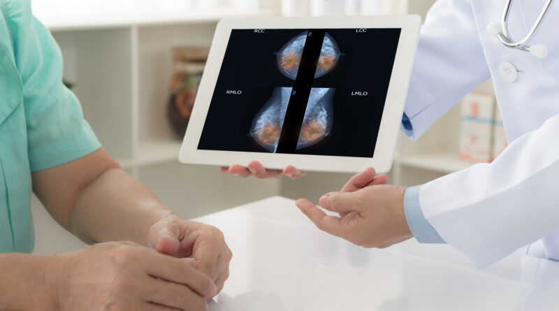 More intensive treatment of DCIS reduces the risk of invasive breast cancer – Harvard Health Blog