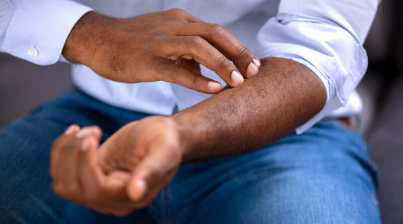 New Drug May Be Better Psoriasis Treatment
