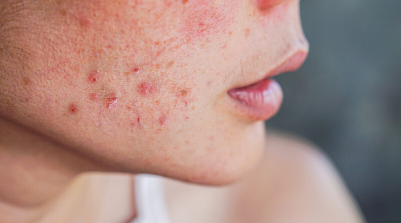 Polycystic ovarian syndrome and the skin – Harvard Health Blog