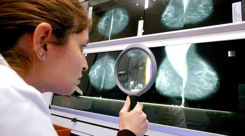 Pandemic Brought Big Drop in Breast Cancer Screenings